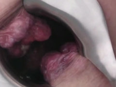 Inside  view of my extreme Prolapse asshole